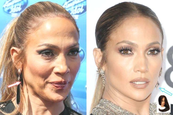 Photo of Jennifer Lopez – botox & facelift – before and after – Rezepte
