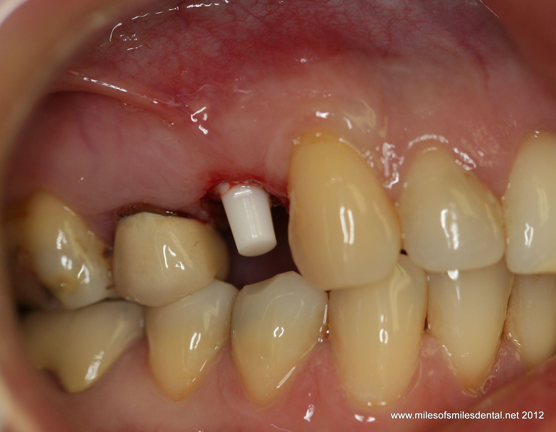 Metal Free Dental Implants In Maryland Metal Free Dental Implants The Truth Metal Free Dental Implants In Mar Free Dental Implants Dental Dental Implants