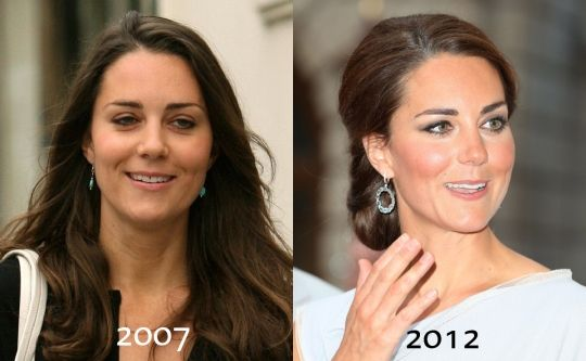 Kate Middleton Before And After | Celebrity Botox Before & After in