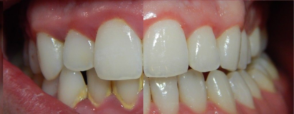 how to dissolve dissolvable stitches faster in mouth
