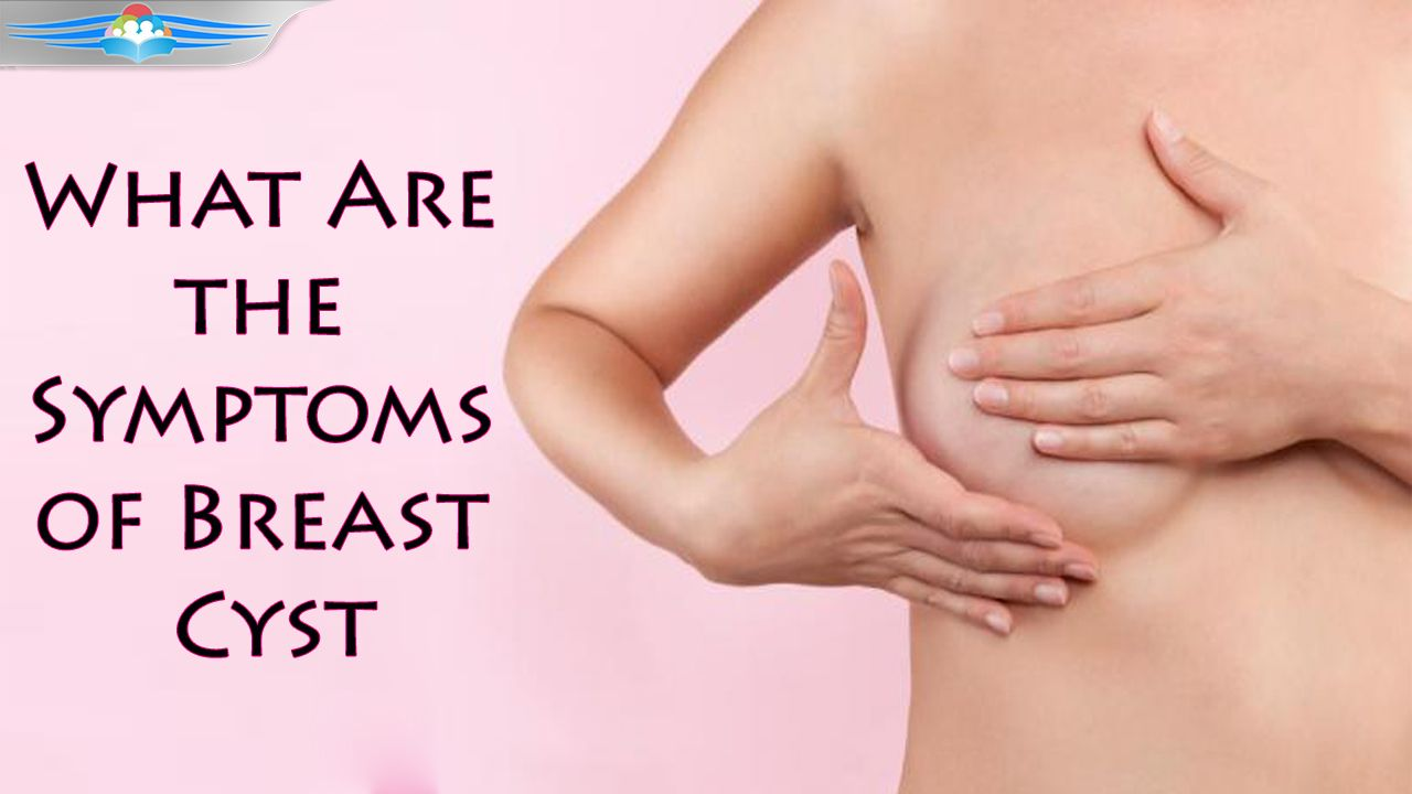The Symptoms of Breast Cyst