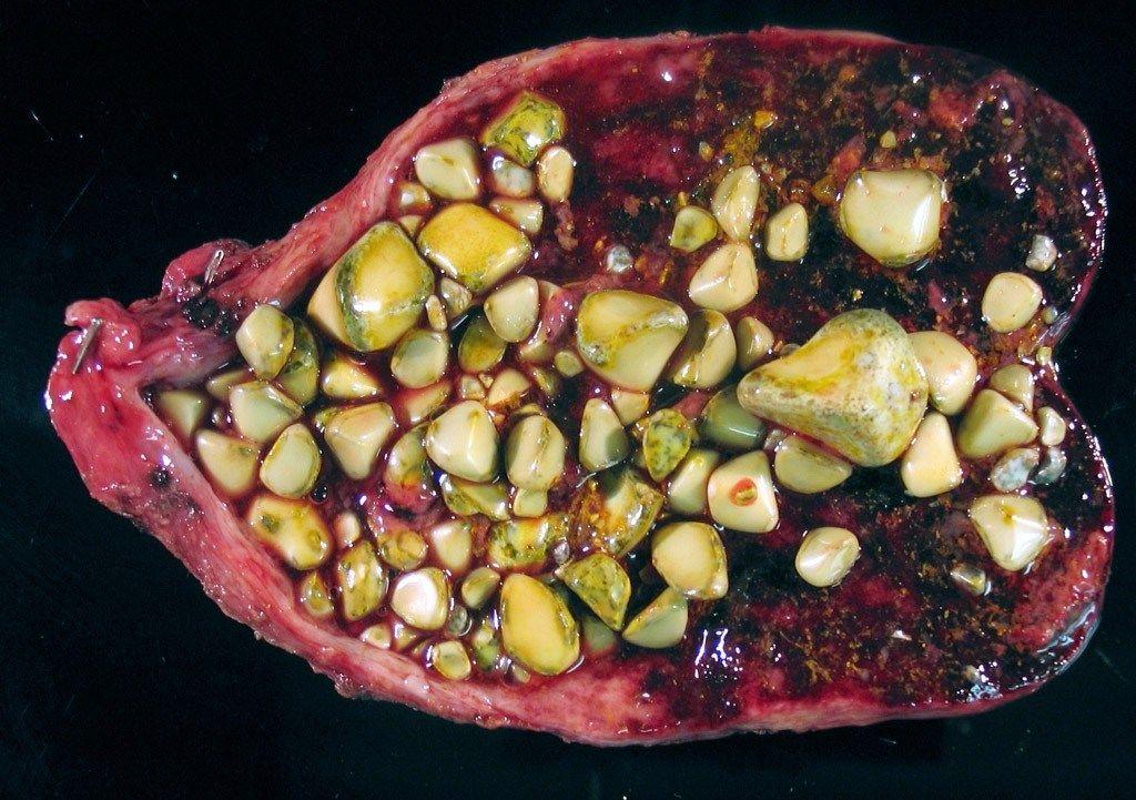 Диета При Холестериновых Камнях В Почках. Правильное питание и диета при камнях в почках у взрослых женщин и мужчин: продукты, растворяющие конкременты