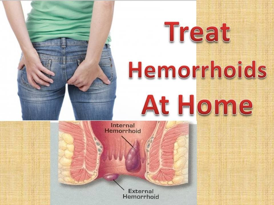 How To Treat Hemorrhoids At Home Quickly  Cure Hemorrhoids Without Surg  Health  Fitness -6180