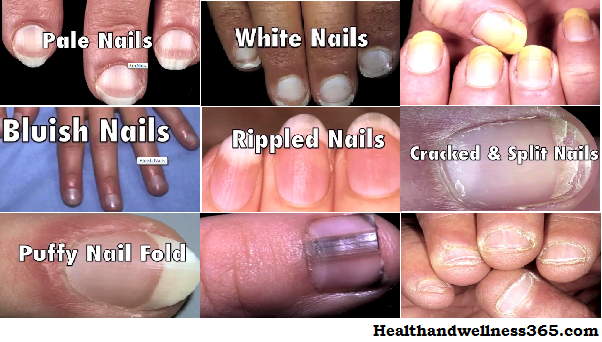 Nail Bed Color Health | Best Nail Designs 2018