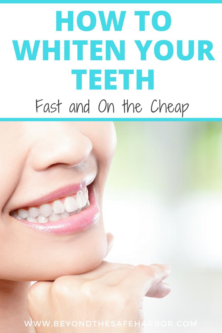 Pin on Teeth