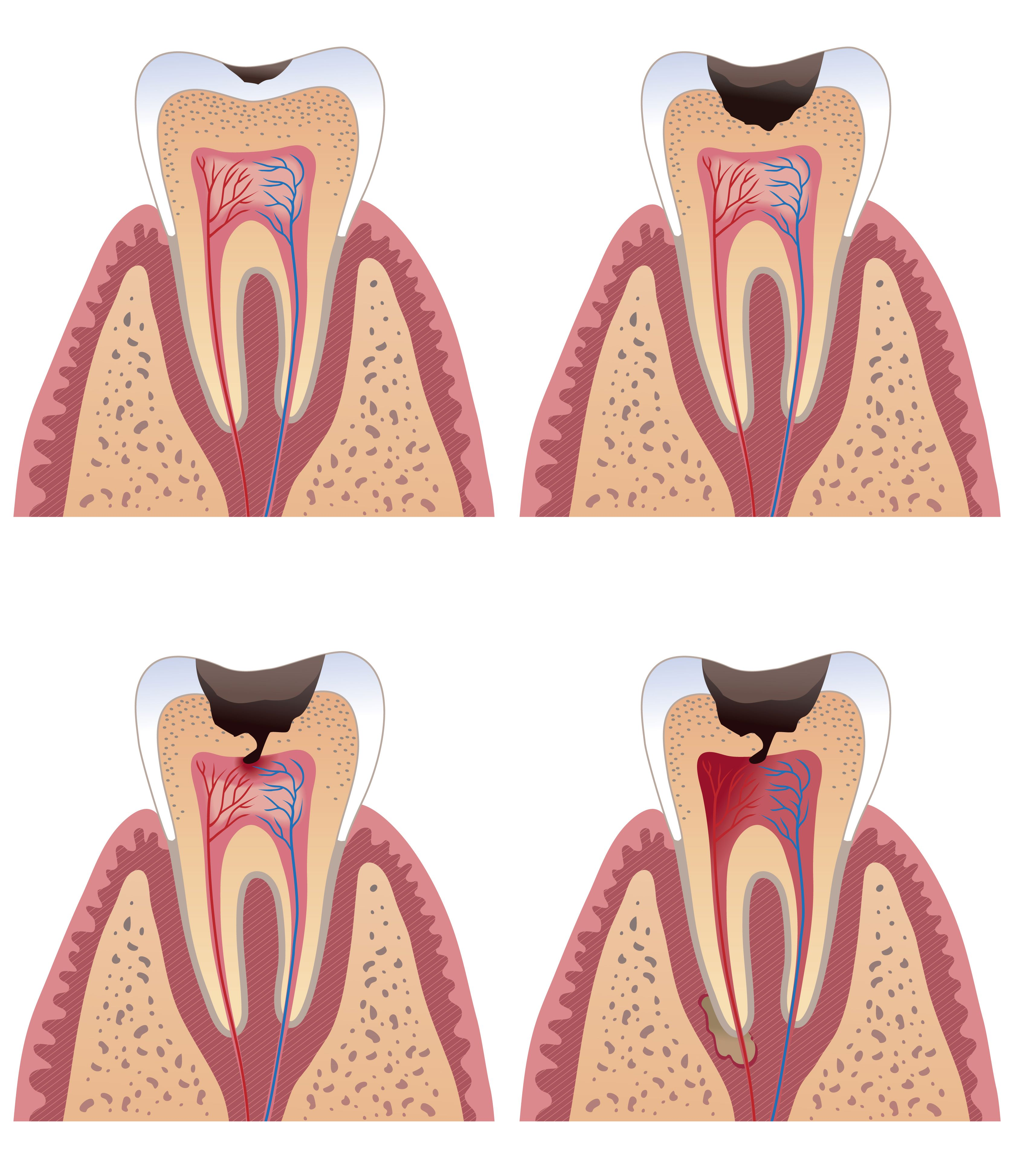 Decay Tooth Dental Caries Always interesting what you can find when ...
