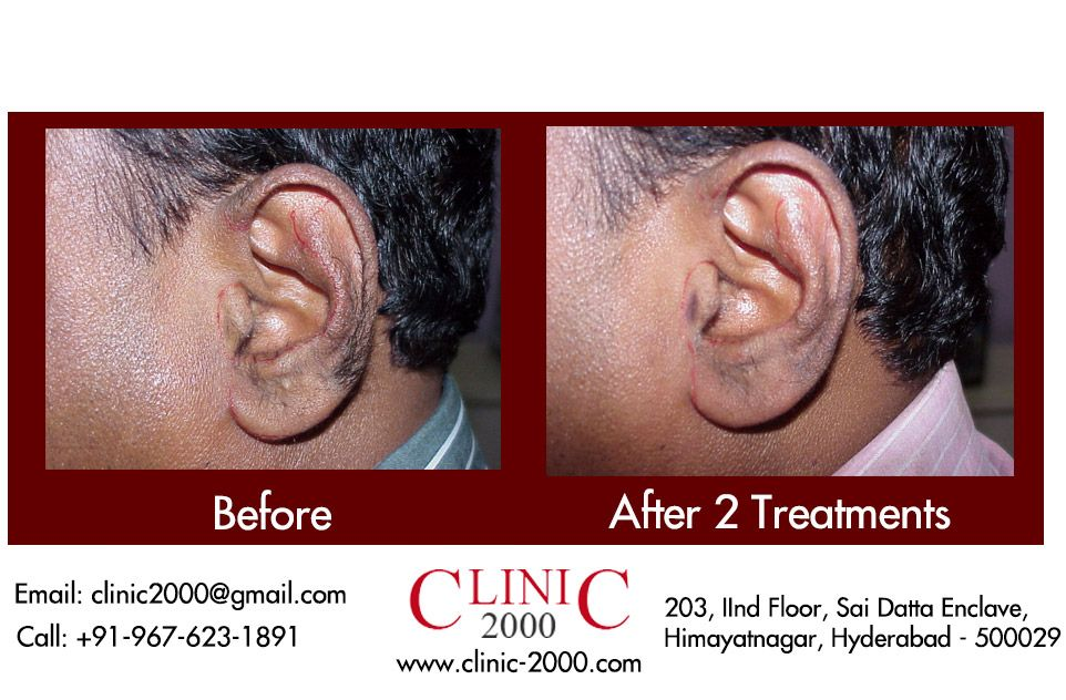 Permanent Laser Hair Removal Limestone Laser Clinic In Hyderabad