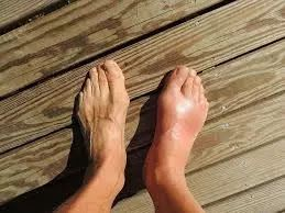 Is There A Natural Cure For Arthritis and Gout