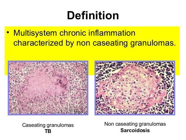Caseating Granuloma Google Search 의학