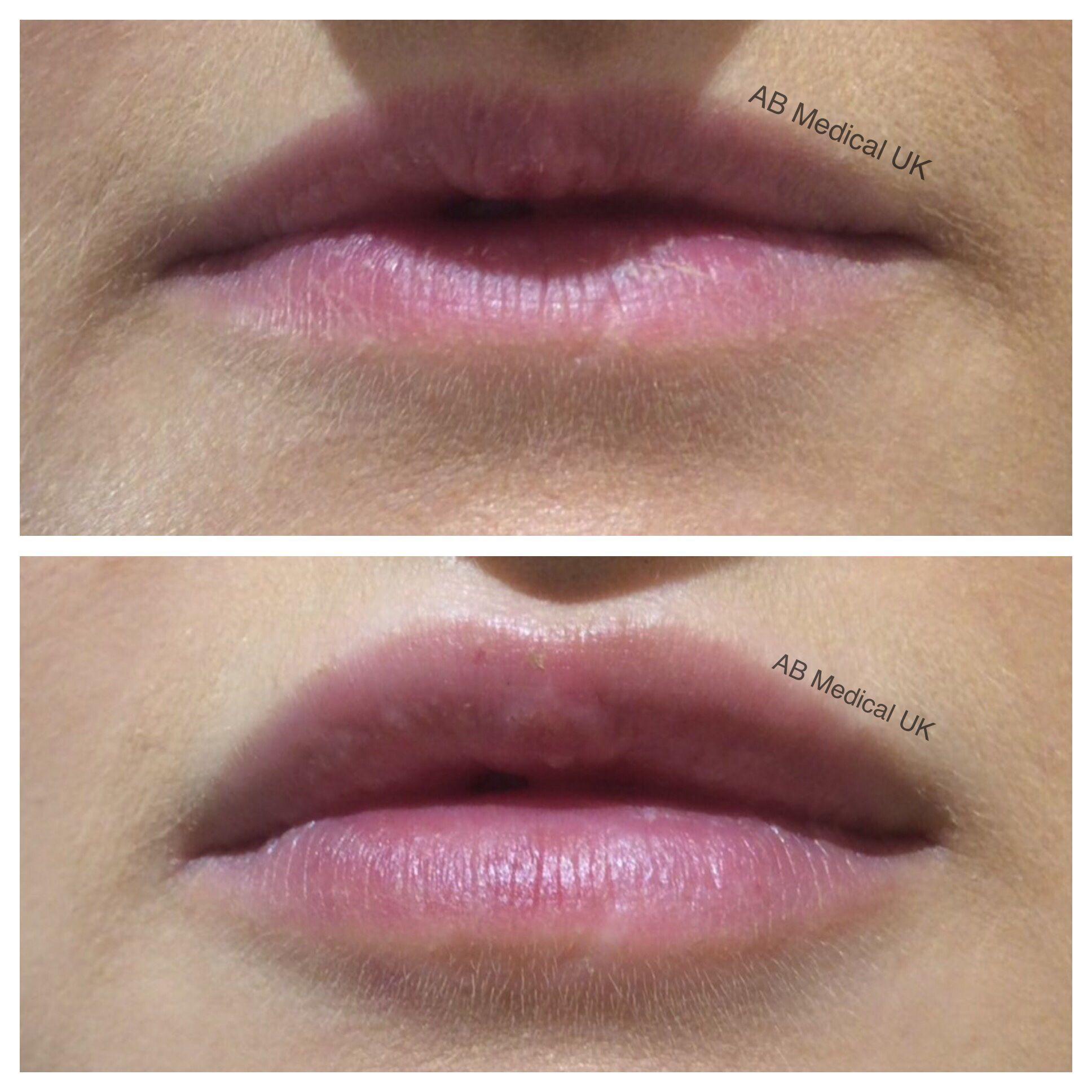 Juvederm ultra smile at AB Medical UK | Lips | Lip