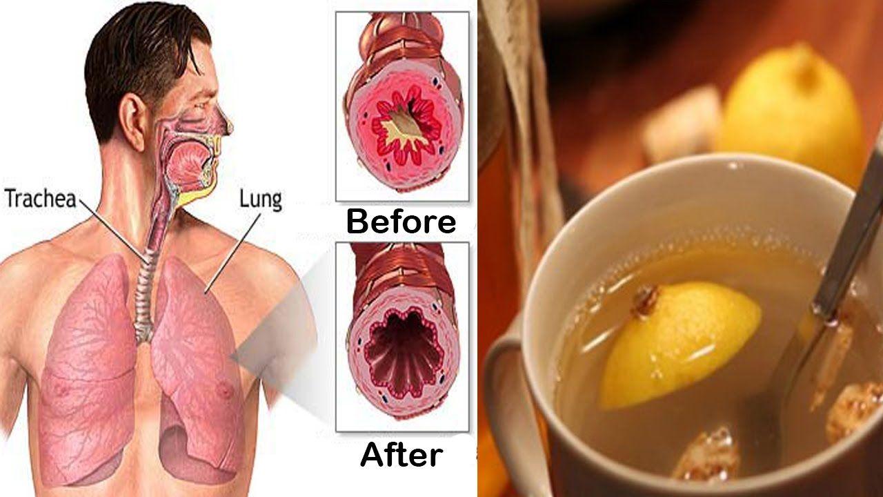 sănătate - tratamentul varicozei