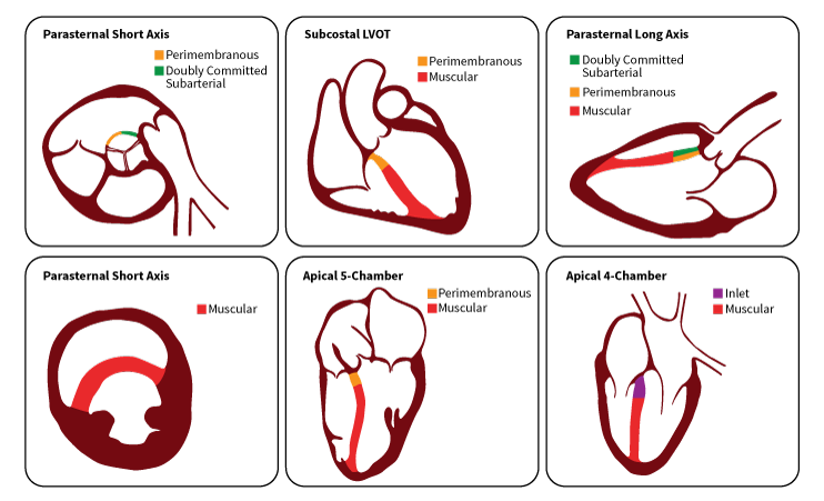 Lesion D Inlet Pediatric Echocardiography Pediatrics