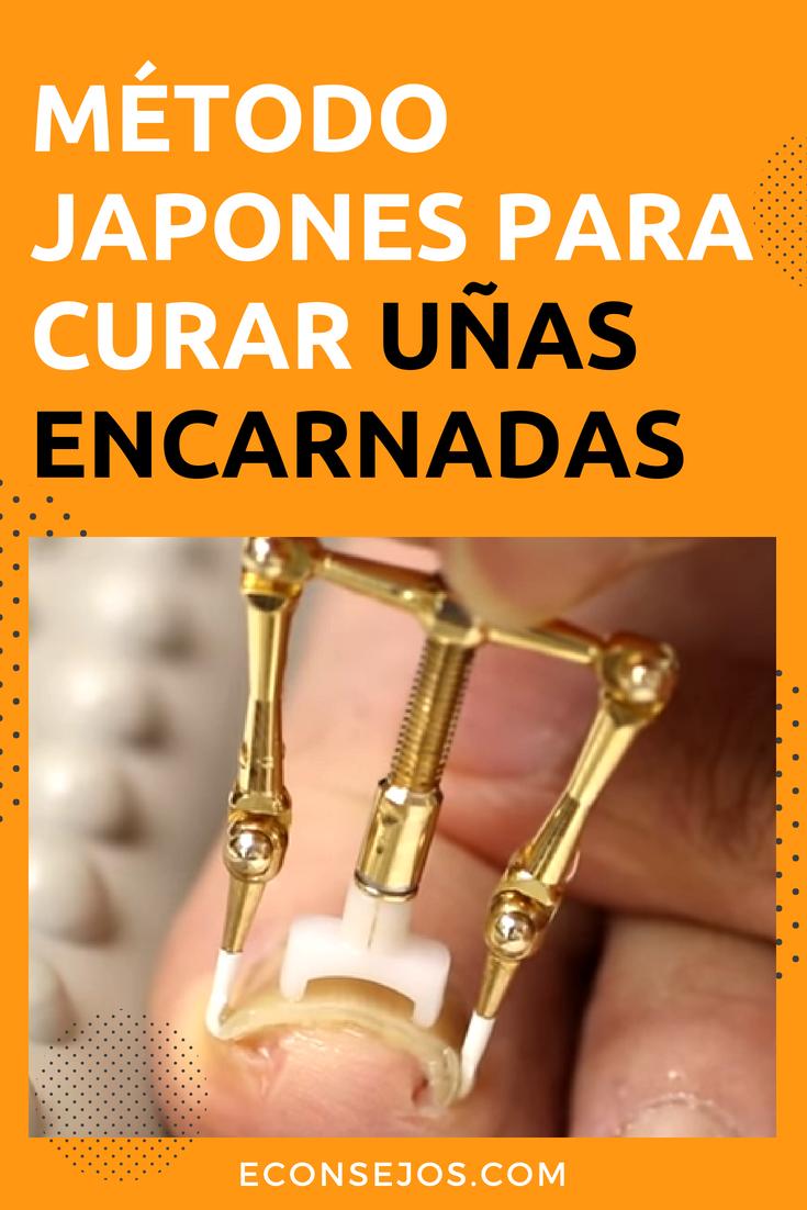 Uñas Encarnadas Nunca Más Vean Cómo Los Japoneses