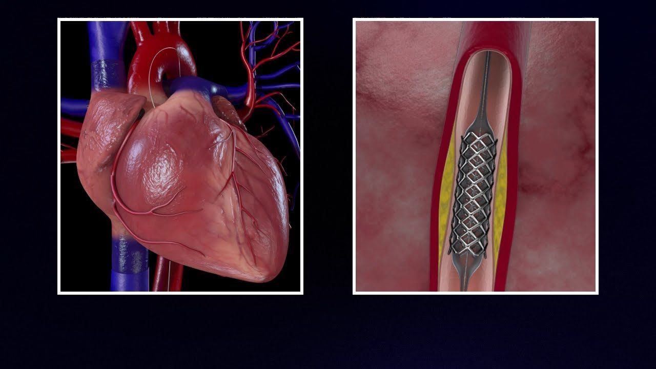 Cardiac Catheterization And Stenting Cardiac Pinterest Cardiac