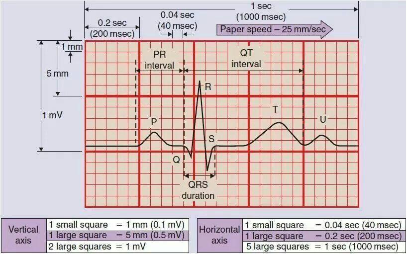 Ecg for lab techs pr interval cardiovascular system