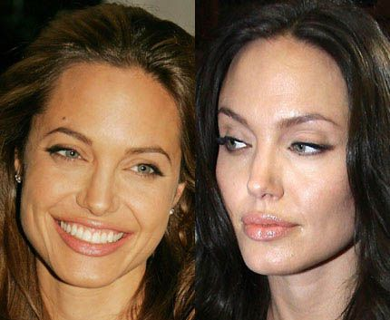 Celebrity Botox Before and After – Suddenly Slimmer's Blog