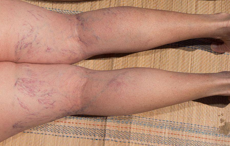 homeopathic remedies for varicose veins