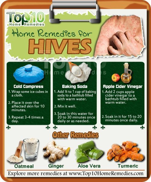 Home Remedies for Hives | Home remedies for hives, Hives ...