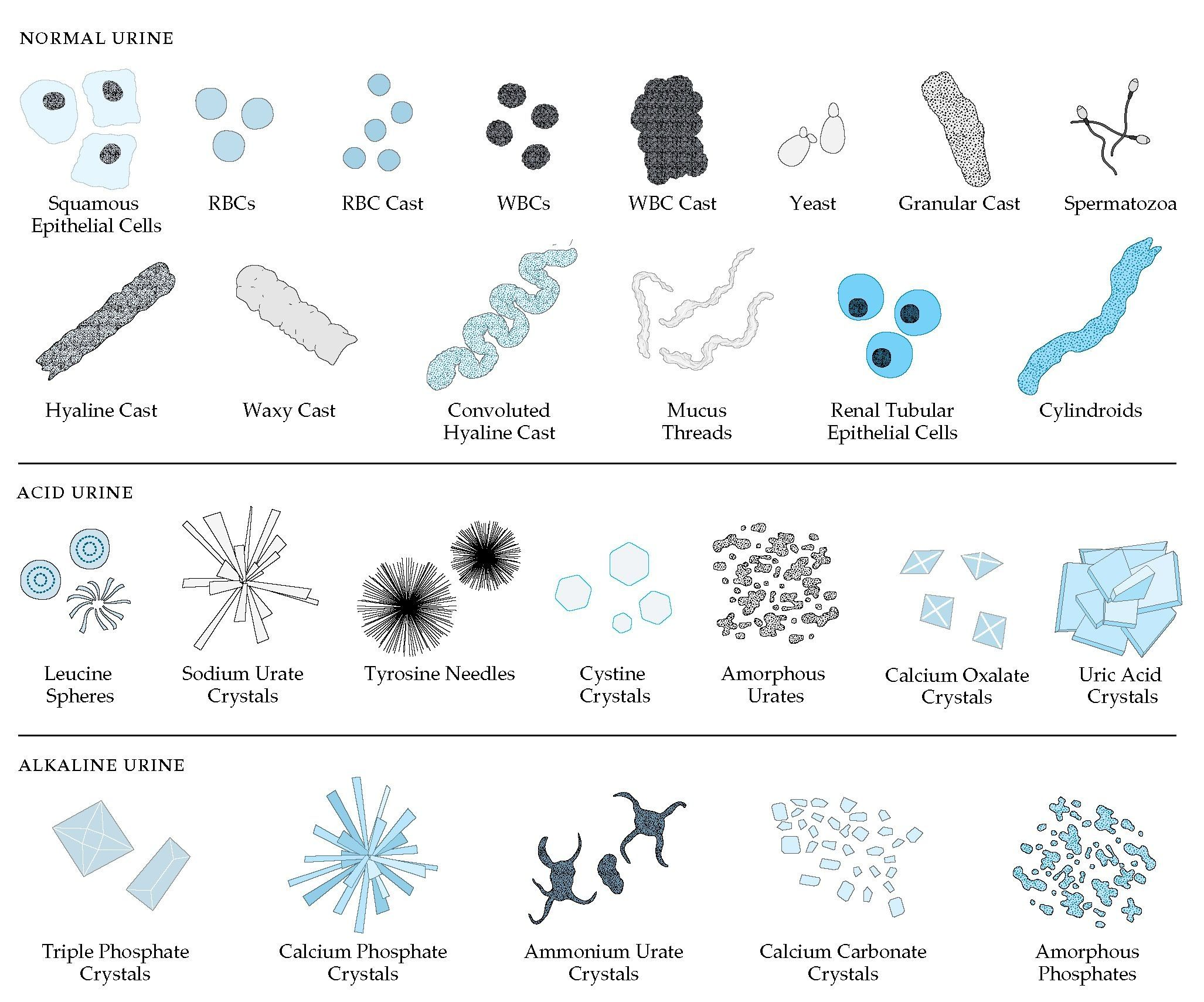 cells in urine sediment - Google Search | MLT Stuff | Pinterest ...
