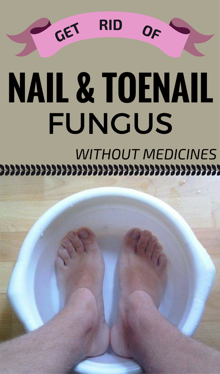 Get Rid Of Nail And Toenail Fungus Without Medicines ...