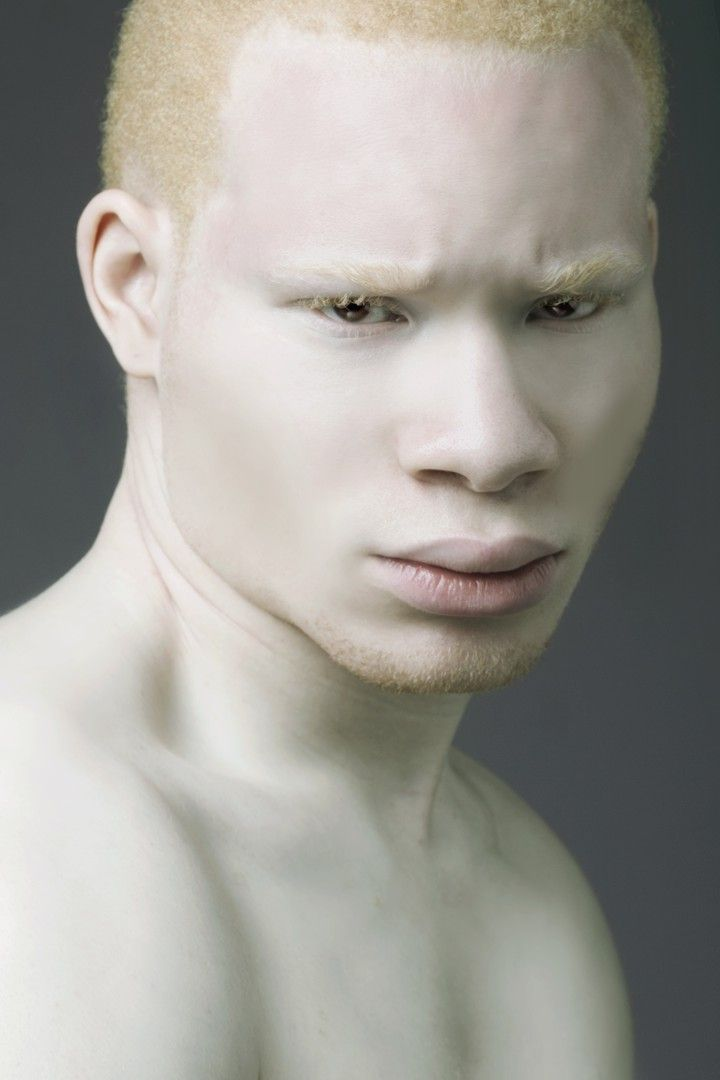 Pin By Iden Convey On 3x4 Albino Model Albinism Albino Human