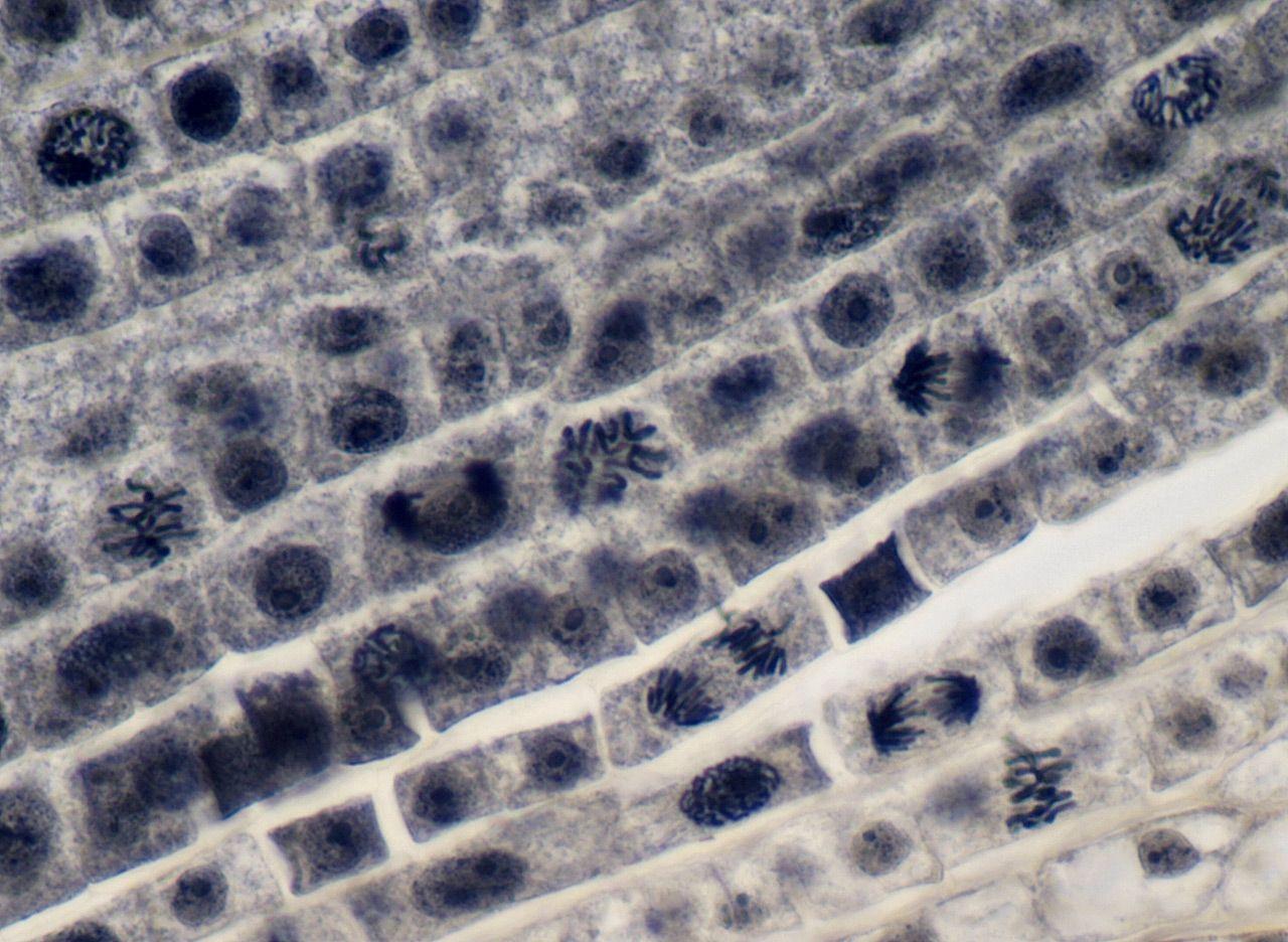 Corte de meristemo apical de raíz de cebolla, con mitosis en diversos estados.