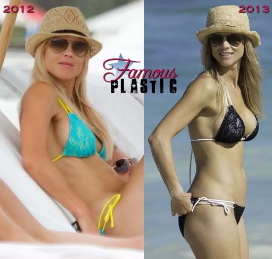 Pin On Celebrity Plastic Surgery Before And After