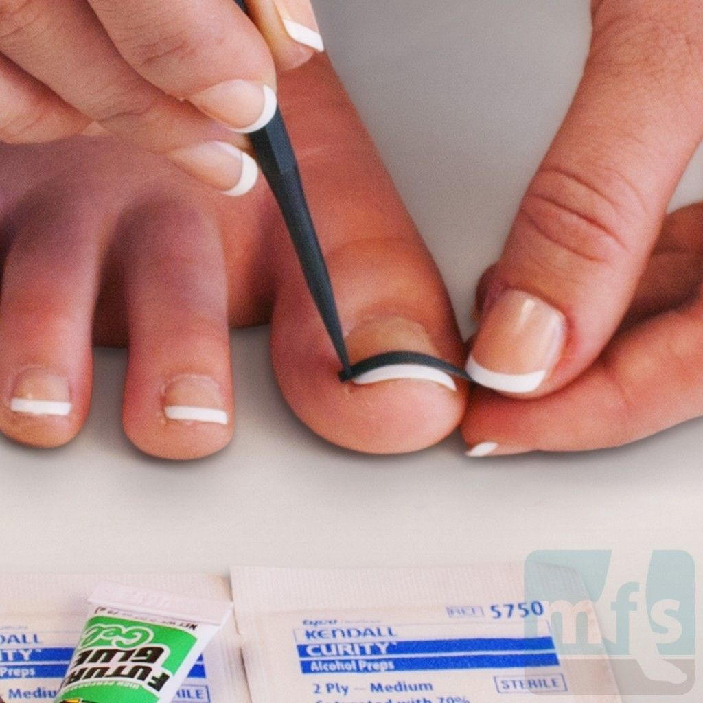 How to treat ingrown toenails