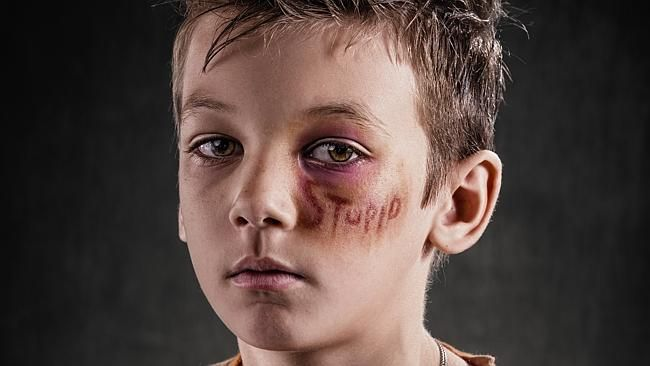 Richard Johnsons Weapon Of Choice Project Shows The Impact Of - Extremely powerful photo project shows effects verbal abuse