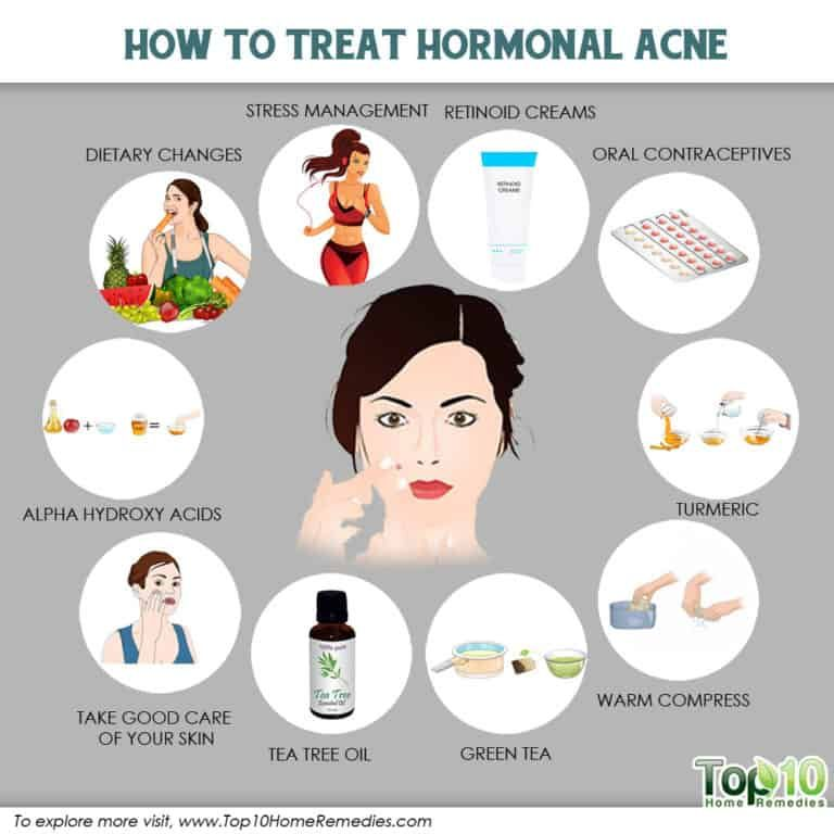 How To Treat Hormonal Acne Top 10 Home Remedies Hormonal Acne Natural Acne Cystic Acne