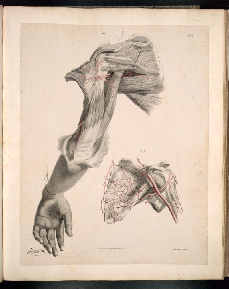 Anatomia Collection - UofT Libraries - Dissection of the shoulder ...