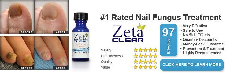 Zeta Clear Toenail Fungus Remover: A Fast Working Home Treatment ...
