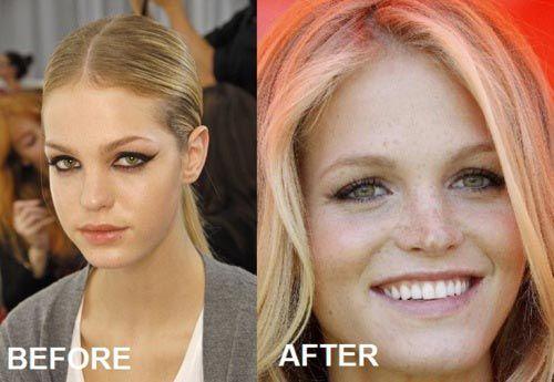 Celebrity Erin Heatherton Nose Job Before After