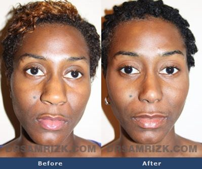 Before And After Photo Of A 24 Year Old Female Patient Who Had