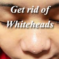 Best option to clear whiteheads