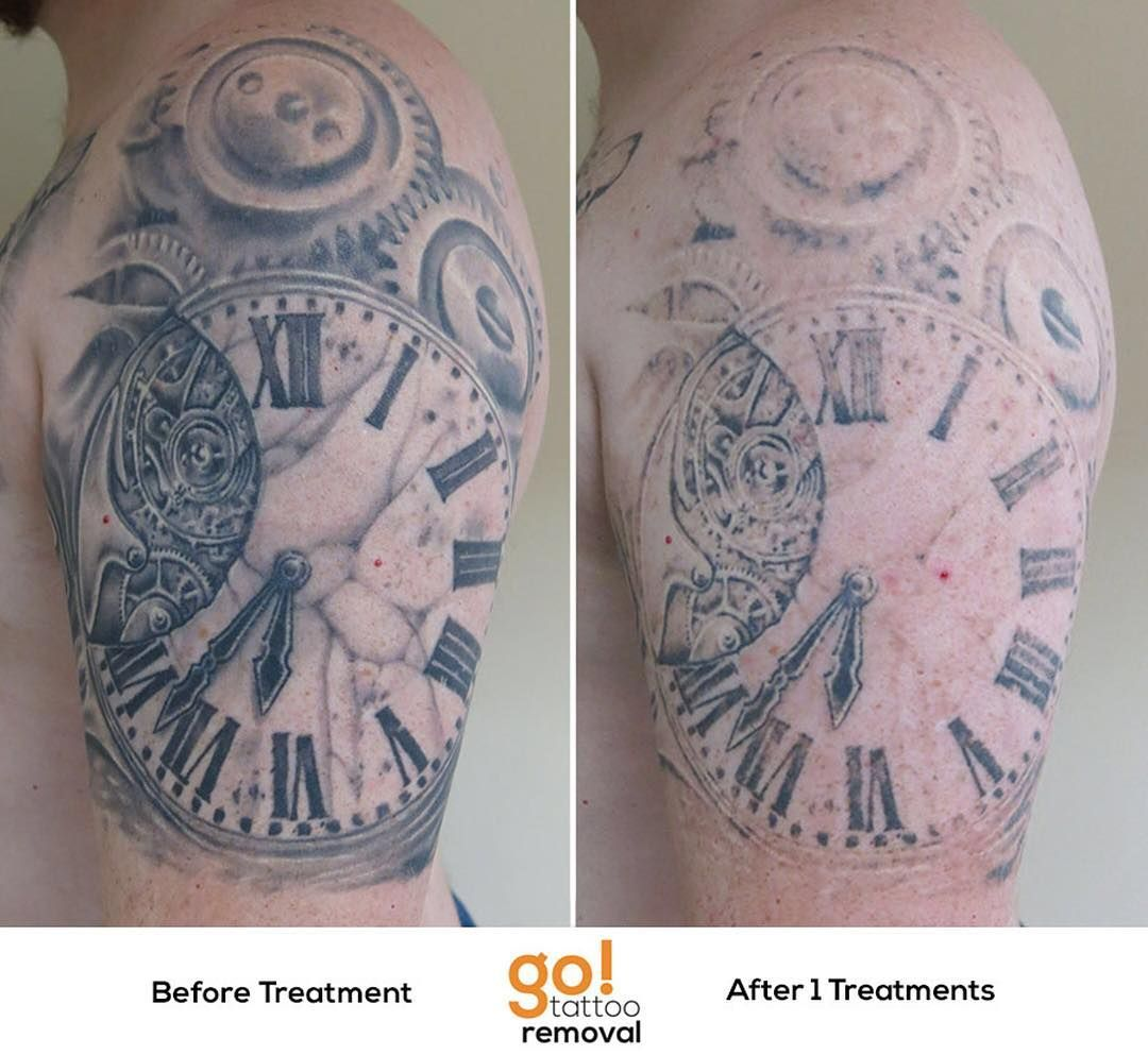 cc7b461fc Grey-wash tattoos almost always fade really quickly and this is a great  example.