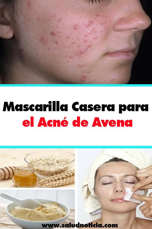 mascarillas caseras contra el acne y espinillas