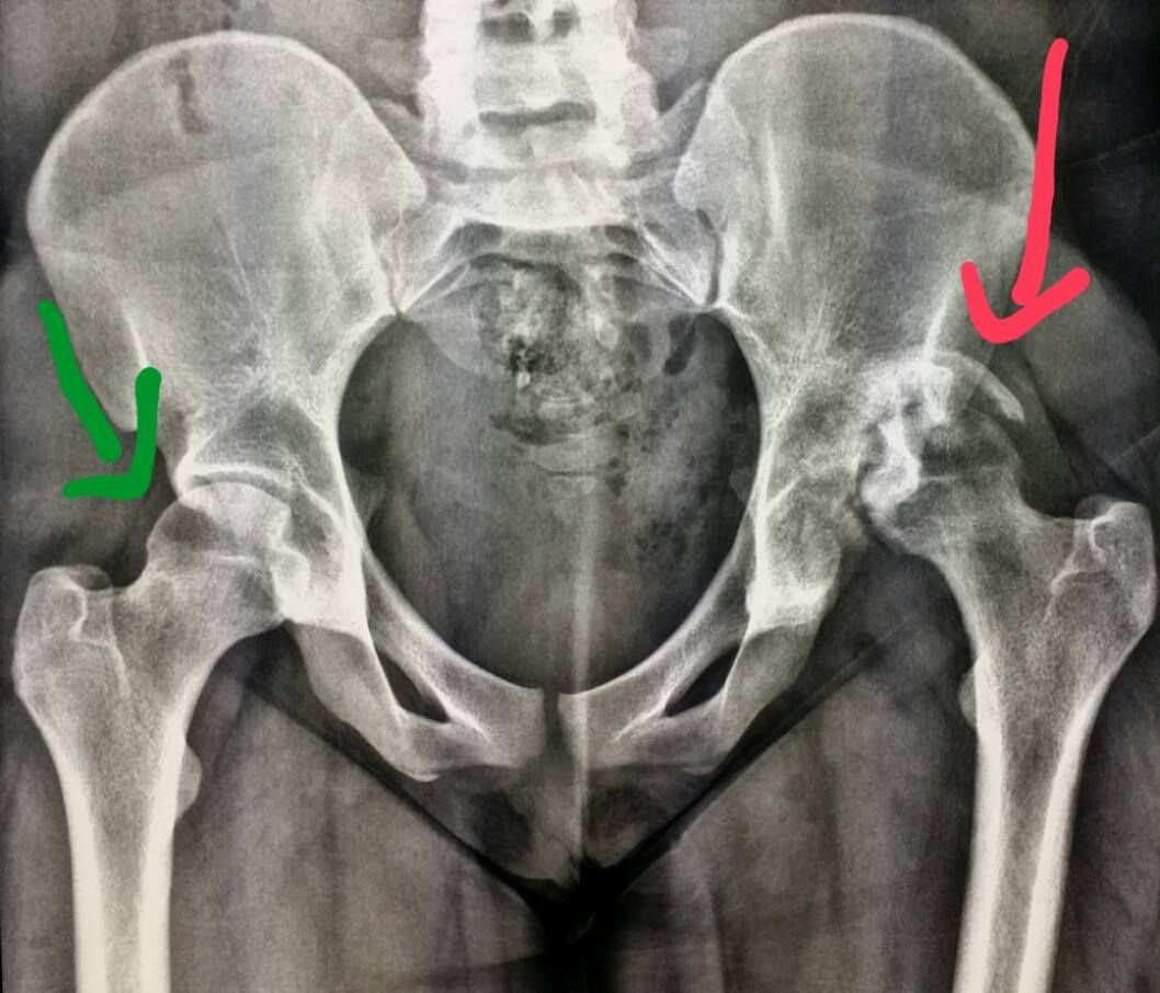 Xray of the pelvis shows a fracture dislocation of the
