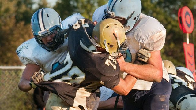 No Device Eliminates Concussion Risk Experts Say Esps News