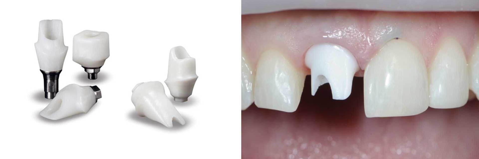 Zirconia Implant Dentistry Implant Dentistry Free Dental Implants Implants