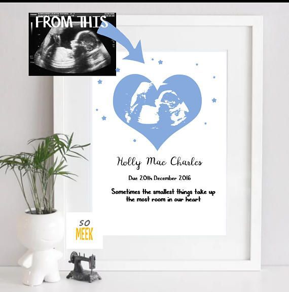 ultrasound art - Personalised Baby Scan - Baby shower gift - mum to be gift - newborn gift - baby memorabilia - Baby keepsake - unique baby #babymemorabilia Perfect gift for a mum to be, unique baby shower gift, newborn gift, alternative gender REVEAL  A timeless keepsake that can be treasured forever! Personalise your baby scan with any colour, name and quotes. An A4 high quality 280gsm linen paper print  Please note  No frame is included Print Colours may look duller than the colours on your s #babymemorabilia