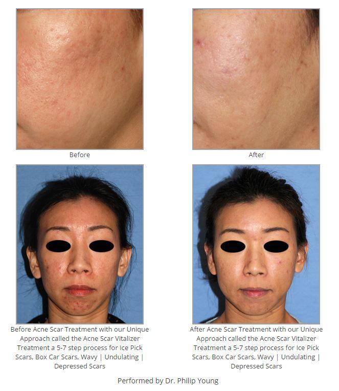 Bellevue | Acne Scar Vitalizer Treatment Seattle | Bellevue
