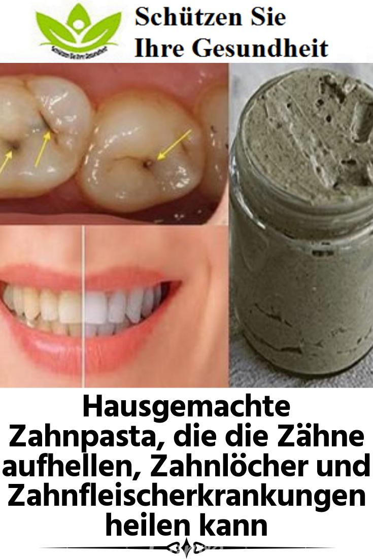 Hausgemachte Zahnpasta, die die Zähne aufhellen, Zahnlöcher und Zahnfleischerkrankungen heilen kann #howtowhitenyourteeth