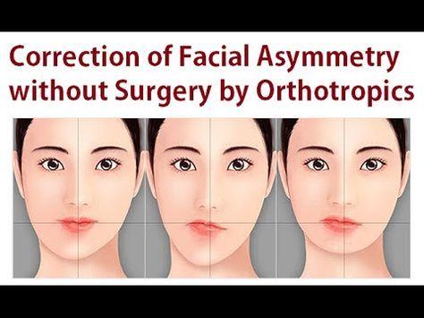 Masked facies but no facial paralysis