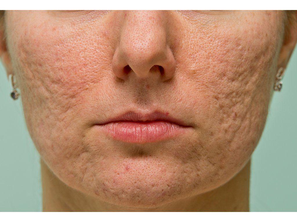 3f4f13abfcb9f02f6117f90310909345 - How To Get Rid Of Ice Burn On Face
