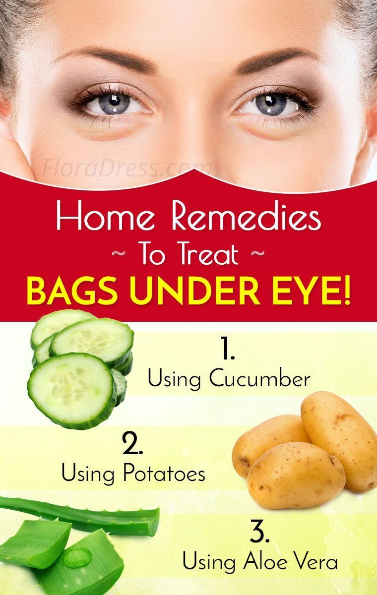Great Homemade Ideas to Remove Bags Under the Eye