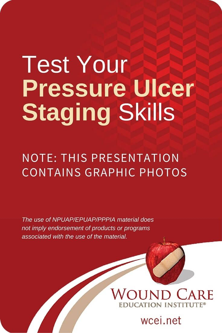 What stage is it test your pressure ulcer staging skills how nursing students 1betcityfo Gallery