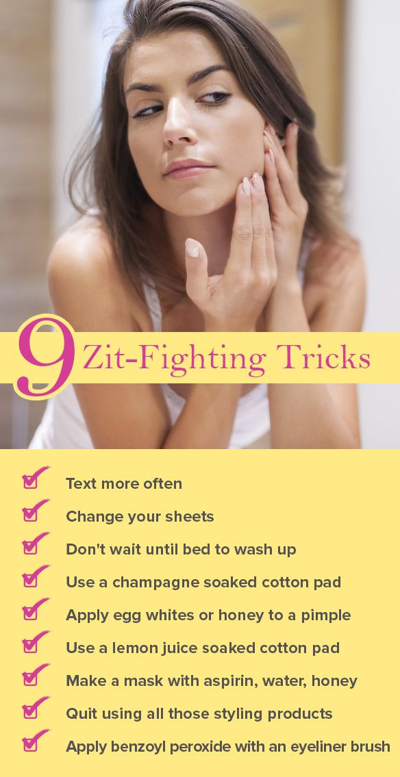 How Texting Can Keep You Acne Free And 8 Other Zit Fighting Tricks How To Get Rid Of Acne Acne Remedies Natural Acne Remedies