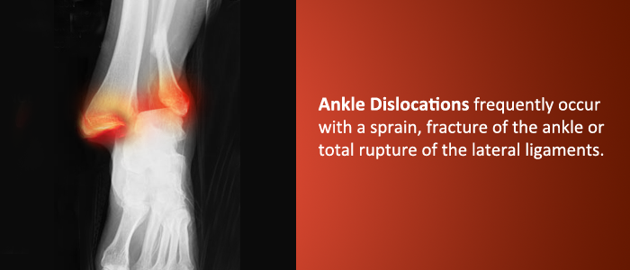 Foot and Ankle Doctors Near Me in NJ Leg injury, Types