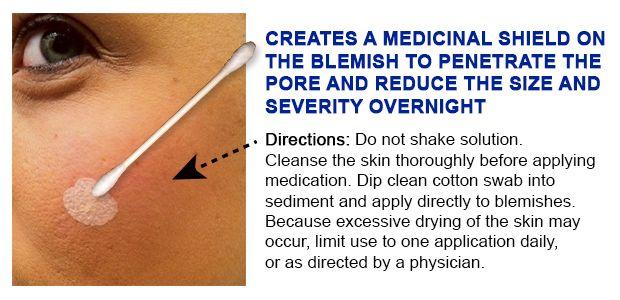 overnight acne treatment